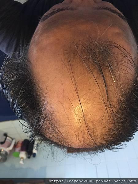 2018年秋天的落髮狀態