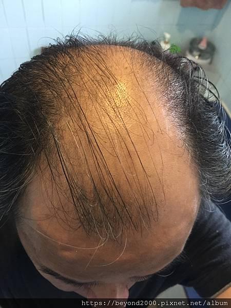 2018的髮量真的讓人很無言~~